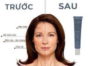 tru-face-line-corrector-myphamnuskinvn