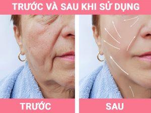truoc-va-sau-khi-su-dung-galvanic-face-spa-2-myphamnuskinvn